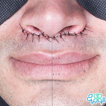 جراحی سانترال لب و محل بخیه های آن در زیر بینی