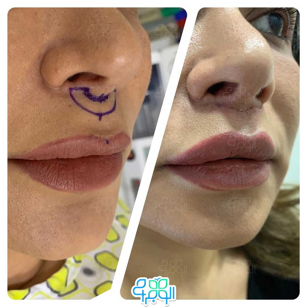 قبل و بعد ازجراحی سانترال لب