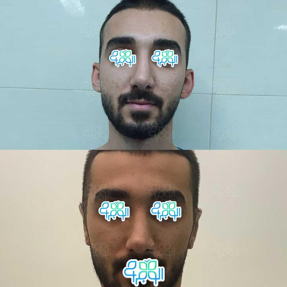 نتیجه قبل و بعد از جراحی گوش برجسته