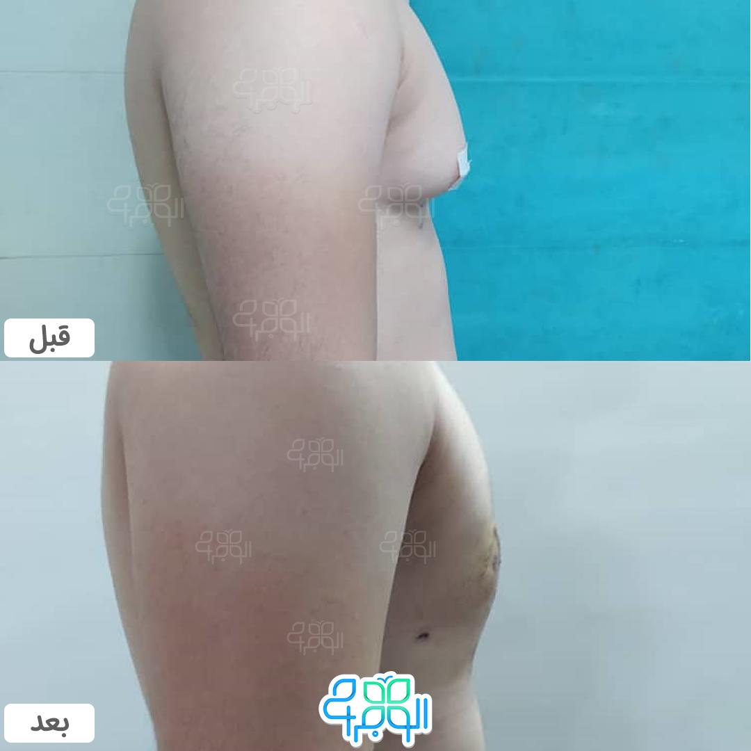 قبل و بعد از جراحی ژنیکوماستی