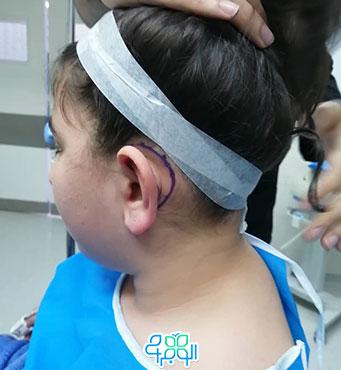 نشانه گذاری هنگام جراحی گوش برجسته کودکان