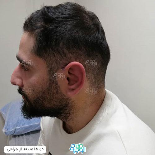 بهترین جراح گوش برجسته شیراز کیست