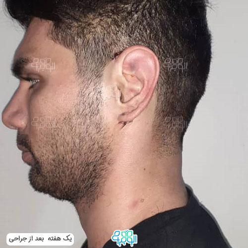 هزینه عمل گوش برجسته تهران