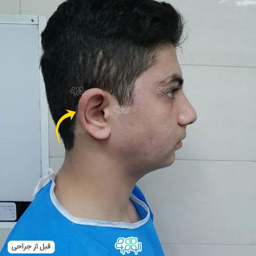 بهترین جراح اتوپلاستی تهران