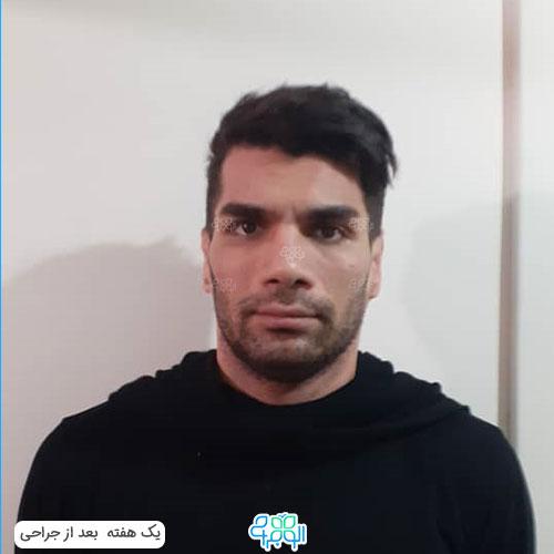 هزینه عمل گوش برجسته ایران