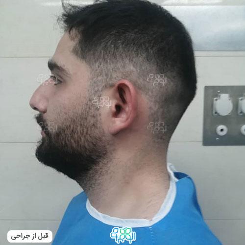 بهترین جراح گوش برجسته تهران کیست
