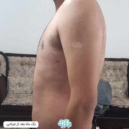متخصص ژنیکوماستی در تهران