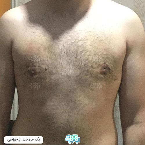 تصویر جراحی ژنیکوماستی در بهترین مرکز ژنیکوماستی تهران