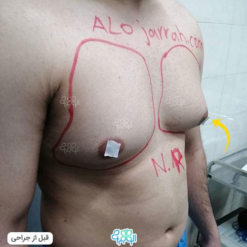 بهترین دکتر ژنیکوماستی در ایران