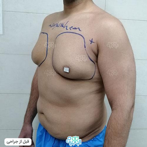 بهترین دکتر برای درمان ژنیکوماستی تهران